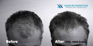 hair transplant for black women free hair transplant consult no stitches no incision minimal