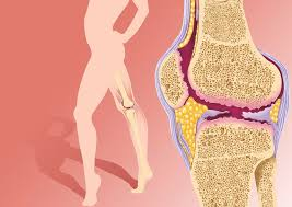 Back Knee Anatomy What Is Causing Your Knee Pain