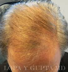 Injection In Scalp For Hair Growth Hair Rejuvenation Lopa Yogesh Gupta M D Faao Faacs