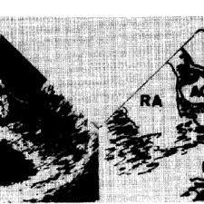 chambre de chasse echocardiographie transoesophagienne montrant la chambre de chasse