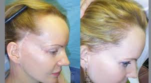 hairstyles that cover face lift scars before after gallery mollura medical hair restoration