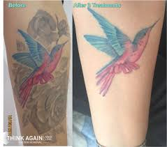 best laser tattoo removal clinic sydney cbd think again laser clinic