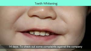 best teeth whitening clinics in slough area youtube