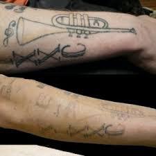 home rockstar tattoo removal
