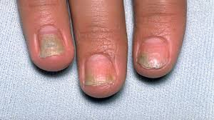 how psoriatic arthritis can damage your nails everyday health