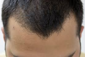 top 10 best hair loss treatments livestrong com
