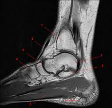 Ankle Ligament Tear Mri Mri Of The Ankle Detailed Anatomy