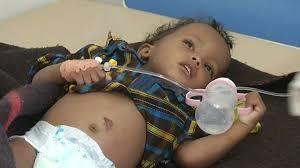 one million children at risk of cholera in yemen u0027s u0027man made