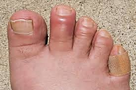 can toenail fungus cause pain and swelling