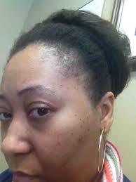 weak hair edges edges thinning curlynikki forums