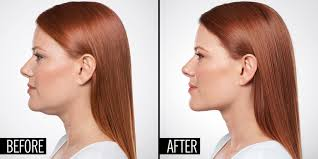 flattering hairstyles for double chins or sagging necks how a plastic surgeon can eliminate your double chin with an injection