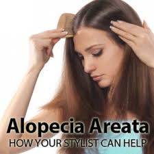 best haircuts for alopecia alopecia areata how your stylist can help