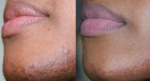 stop womens chin hair growth how to stop female facial hair growth using diet and nutrition