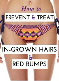 how to remove engrown hair onunderwear line how can i avoid getting red bumpy awful ingrown hairs when my