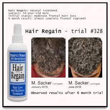 Natural Hair Growth Treatments Month Hair Regain Stop Hair Loss Growth Treatment Mens Natural Saw