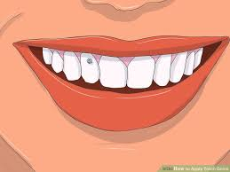 diamond stud on tooth how to apply tooth gems 14 steps with pictures wikihow