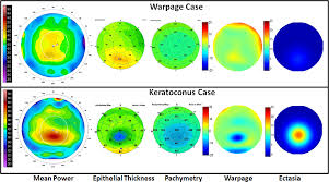 differentiating keratoconus and corneal warpage by analyzing focal