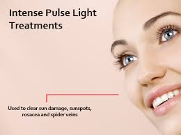 intense pulsed light therapy intense pulsed light ipl therapy about face