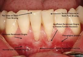 goody bands for teeth dental questions davis localwiki