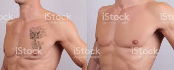 laser tattoo removal before and after stock photo 514411362 istock