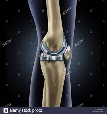 100 knee replacement faqs knee hip total knee replacement