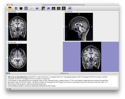 quick start extract a brain brainsuite