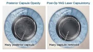Blindness After Cataract Surgery Cataract Surgery Complications Late Complications That You