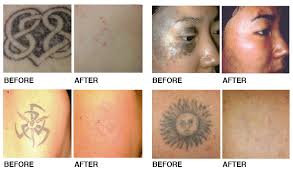 tattoo removal coquitlam port moody burnaby new westminster