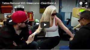 numbing cream for tattoos tattoo removal greencaine