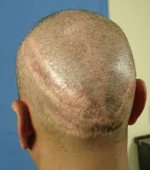 pubic hair on thigh hair loss forum