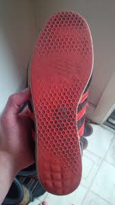 the bottom of my shoe has worn out to different patterns than the