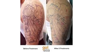 tattoo removal reviews laser tattoo removal gastown tattoo