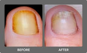 fungal nail infection laser treatment premier clinic