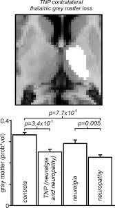 different pain different brain thalamic anatomy in neuropathic