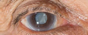Cataract Leads To Blindness Due To Scientists Have Developed An Eye Drop That Can Dissolve Cataracts