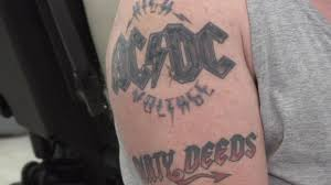 acdc tattoo new generation of fda approved lasers zap stubborn tattoos