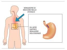 acidit縲 di stomaco 7 rimedi per combatterla l altra riabilitazione