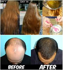 how to stop hair fall for men cure hair loss cure baldness