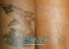 laser tattoo removal gallery before and after laser tattoo removal