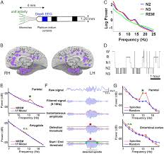 sleep spindles in humans insights from intracranial eeg and unit