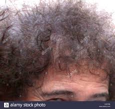 queen guitarist brian may shows signs of thinning hair from his