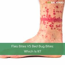 Backyard Bites Flea Bites Vs Bed Bug Bite Nov 2017 Which Is It