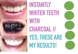 Best Way To Whiten Teeth At Home Diy Diy Teeth Whitening Home Design Furniture Decorating Best