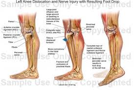 Foot Anatomy Nerves The Left Of Foot Nerves Diagram On The Images Wiring Diagram