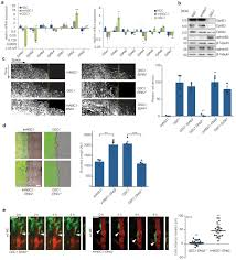 ephrinb2 drives perivascular invasion and proliferation of