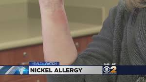nickel allergy testing dr max gomez nickel allergy