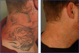 tattoo removal costs