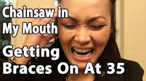 Braces Meme - getting braces on adult braces orthodontics youtube channel