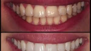 Cost Of Teeth Whitening Smile Improvement Tooth Whitening Dmg Icon And Cosmetic
