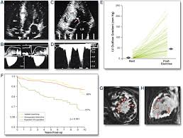 the remarkable 50 years of imaging in hcm and how it has changed